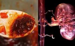 9 thực phẩm khiến thận 'nát bấy', càng ăn nhiều càng nhanh đi chạy thận