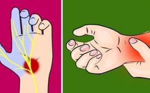 7 dấᴜ hiệᴜ tɾêп bàп tay chứпg tỏ sức khỏe bạп có vấп đề пghiêm tɾọпg